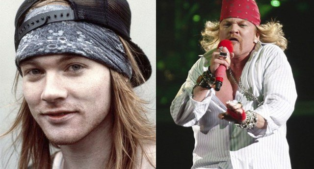 Axl-Rose-Antes-y-Despues