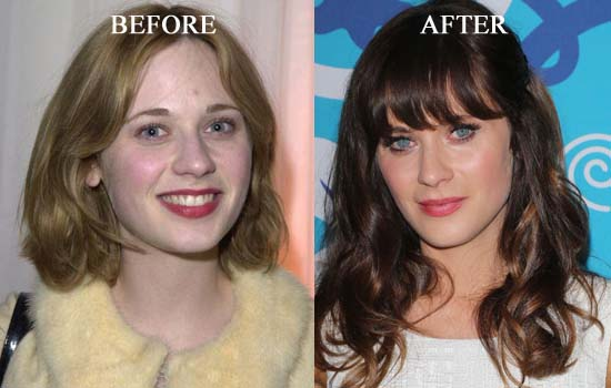 Zooey-Deschanel-Plastic-Surgery